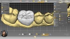 Curso CAD CAM dental. Corona y puente con Inlab20 Dentsply Sirona