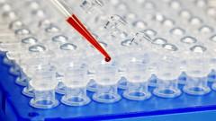 Learn DNA Primer Design for Polymerase Chain Reaction - UdemyFreebies.com