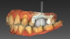 Imágen de CAD CAM Corona sobre implante con Inlab 20 Dentsply Sirona