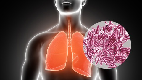 Microbiology: All about Tuberculosis (TB)