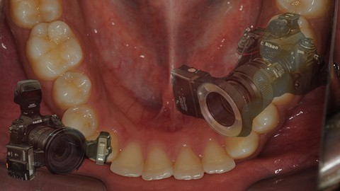 Learn Clinical Photography in Dentistry