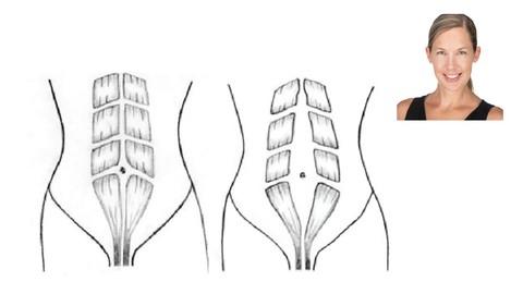 Diastasis Recti Recovery System
