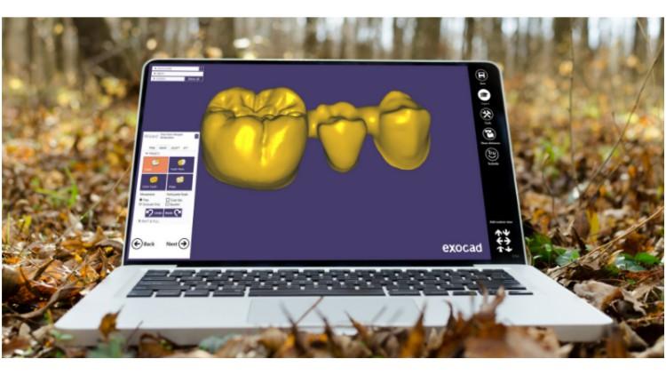 Digital flow in dentistry and basic exocad program